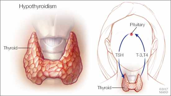 Diet for Hypothyroidism - Dr. Debabrata Sarkar